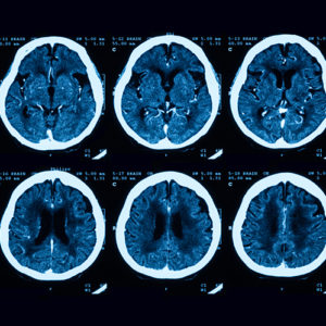 A series of X-ray scans of a human brain set side by side.